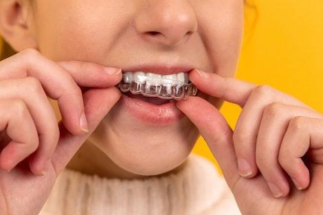 Chica que se pone el gel para el blanqueamiento de los dientes